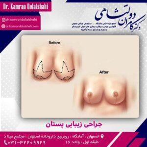 جراحی زیبایی پستان
